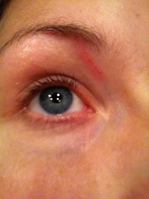 skavsår i ögat