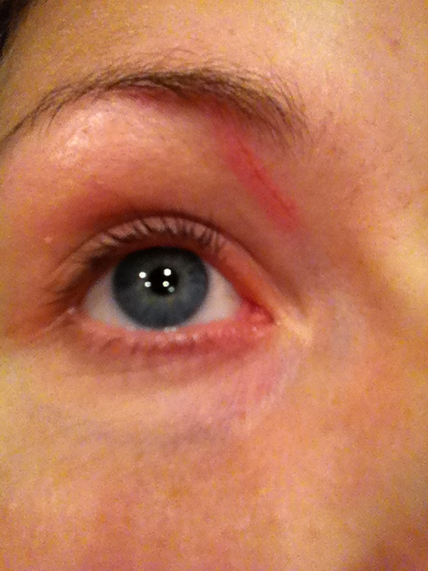 sår vid ögat